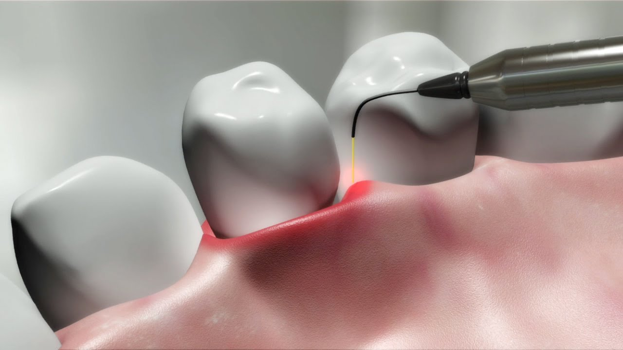 Laser-dentistry-treatment